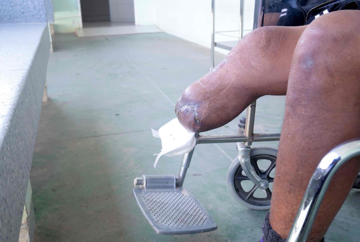 why do diabetics lose limbs